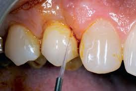 Cura della parodontite con il laser